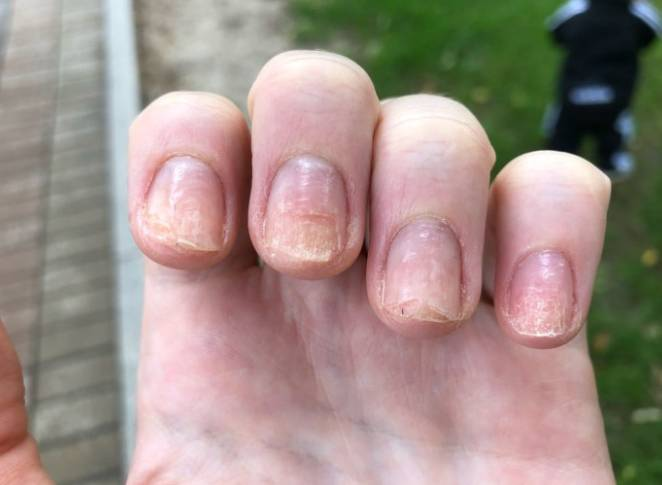 отнихолизис отслойка ногтя на руках