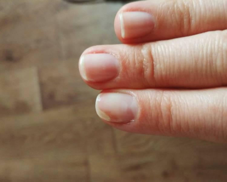отнихолизис ногтей на руках после гель лака