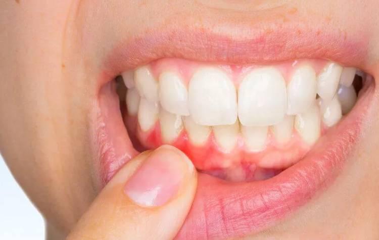 Полоскание для зубов и десен при воспалении