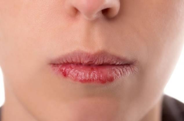 трещины на губах и кровь