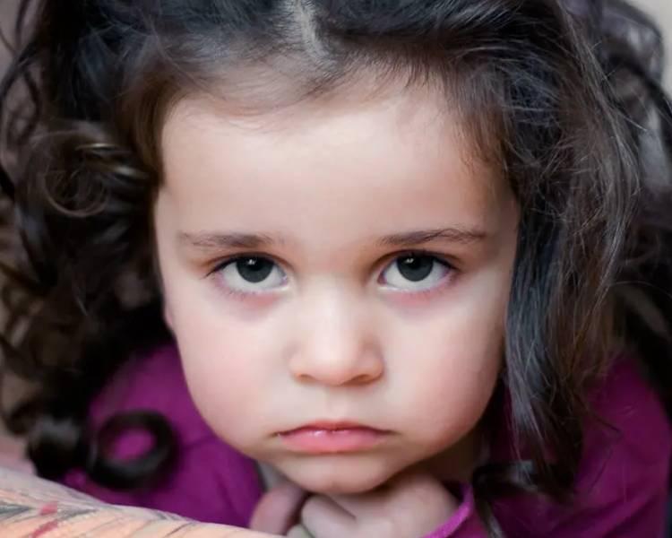 у ребенка темные круги под глазами